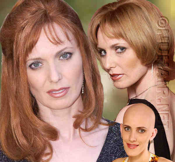 Human Hair Wig Female Alopecia Areata Hair Loss Wig Dallas DFW TX