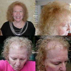 Laser Hair Treatment MEp90 Hair Growth